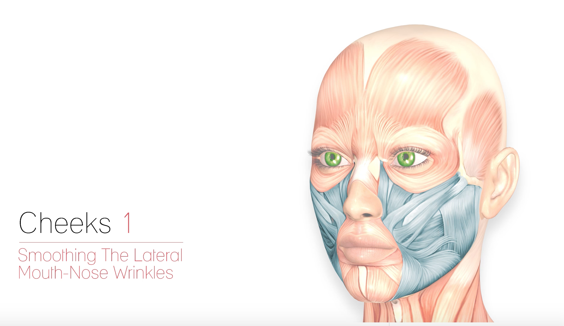 Cheeks 1- Smoothing the Lateral Mouth-Nose Wrinkles